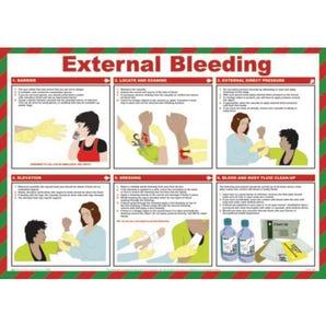 External bleeding sign
